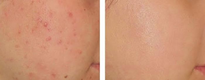 duong-da-mat-kem-tri-mun-yanhee-acne-cream-10g-thai-lan-275